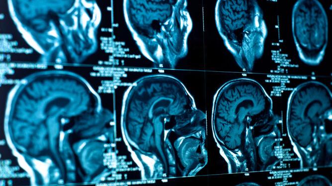 Polacy zmienili złośliwego guza mózgu w łagodny nowotwór